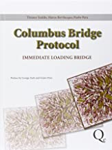 Columbus Bridge Protocol: Surgical and Prosthetic Guidelines for an Immediately Loaded, Implant-supported Prosthesis in the Edentulous Maxilla